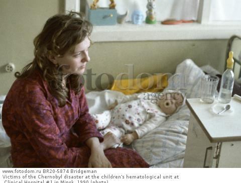 Victims of the Chernobyl disaster at the children's hematological unit at Clinical Hospital #1 in Minsk, 1990 (photo)